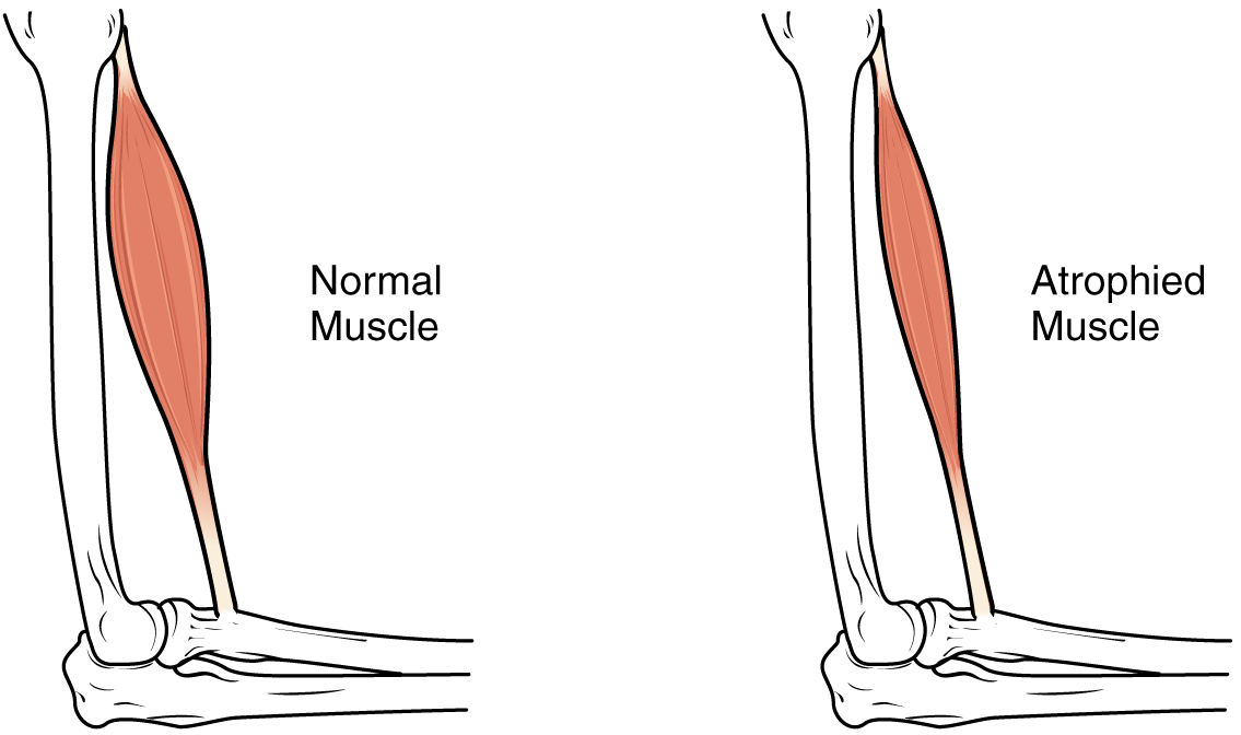Muscle-atrophy
