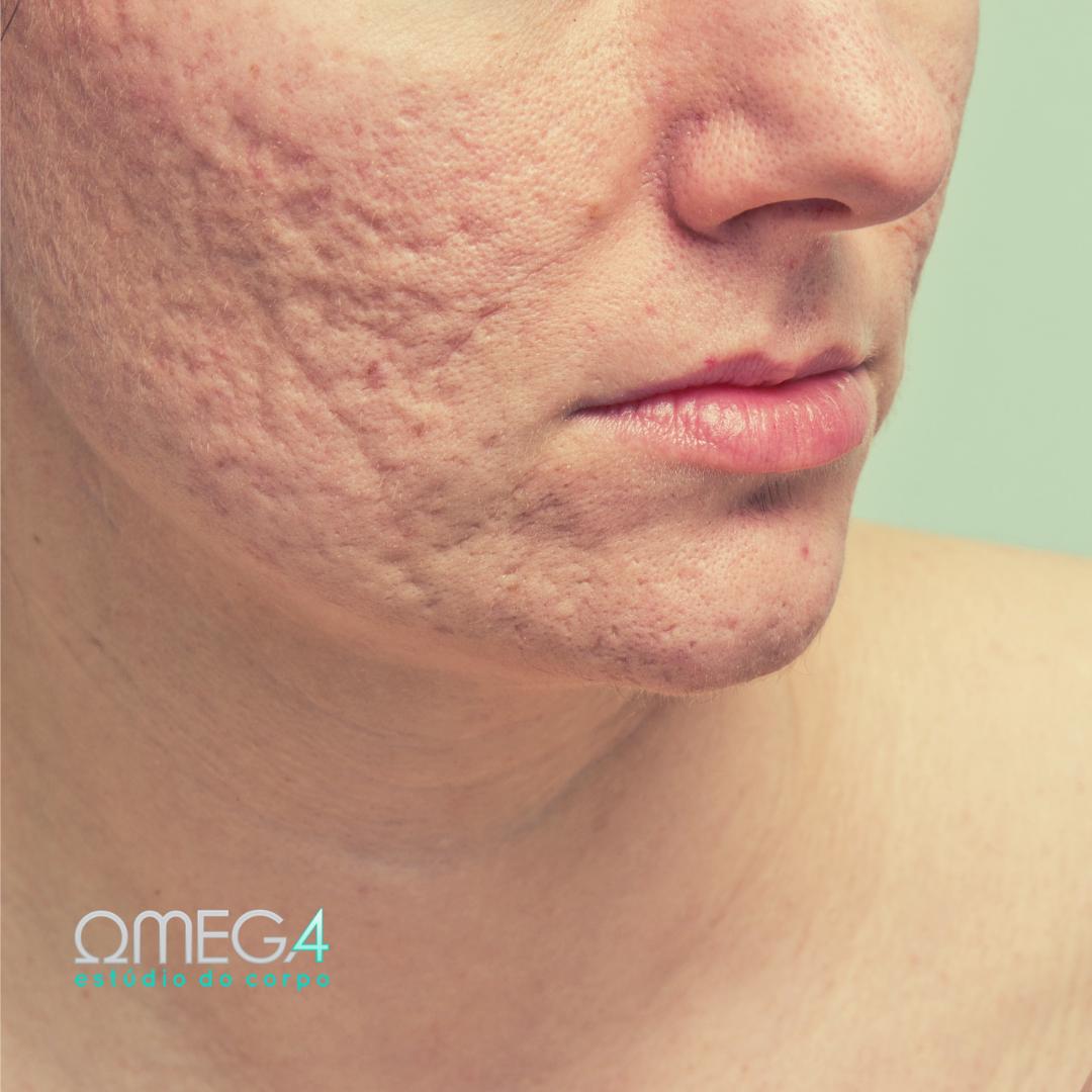 Tratamento anti acne funciona?
