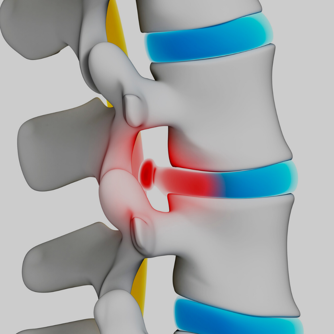 pilates e a hernia de disco