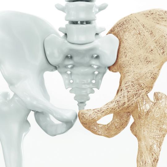 pilates-contra-a-osteoporose