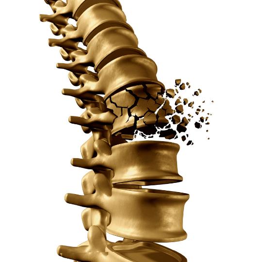 metodo-pilates-para-osteoporose