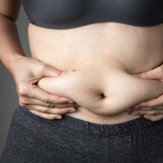 gordura-localizada-na-barriga