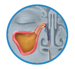Relief from Balloon Sinuplasty