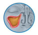 Pain and Inflammation due to Sinus Infection