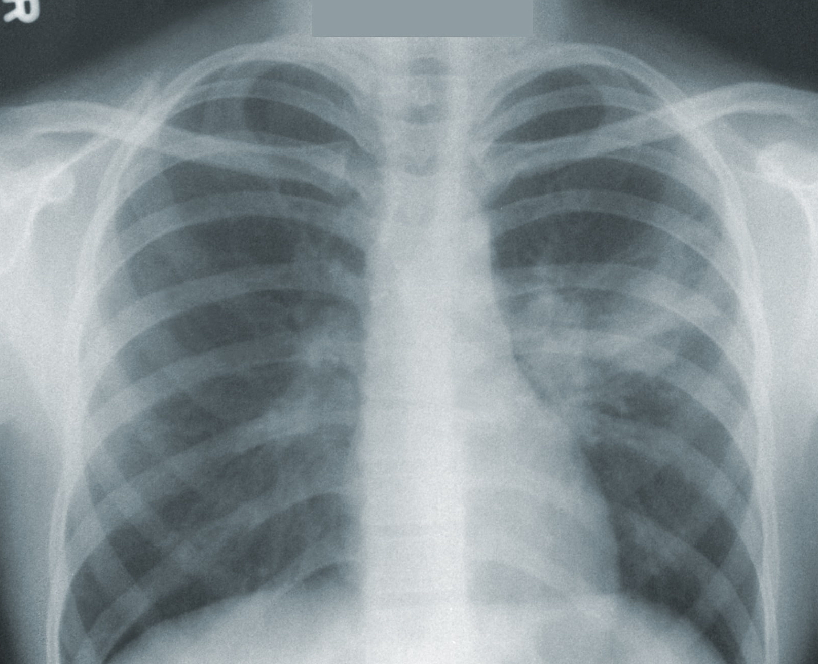 Image of an X-ray uploaded on Teamscope.