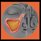 Dilate-Balloon Sinuplasty Procedure