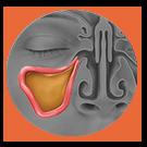 Locate-Balloon Sinuplasty Procedure
