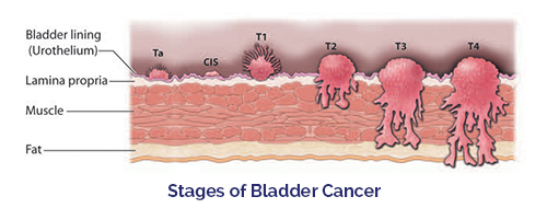 an overview of the final stage of cancer metastates