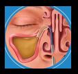 Balloon Sinus Dilation Process - Step 2: Dilation