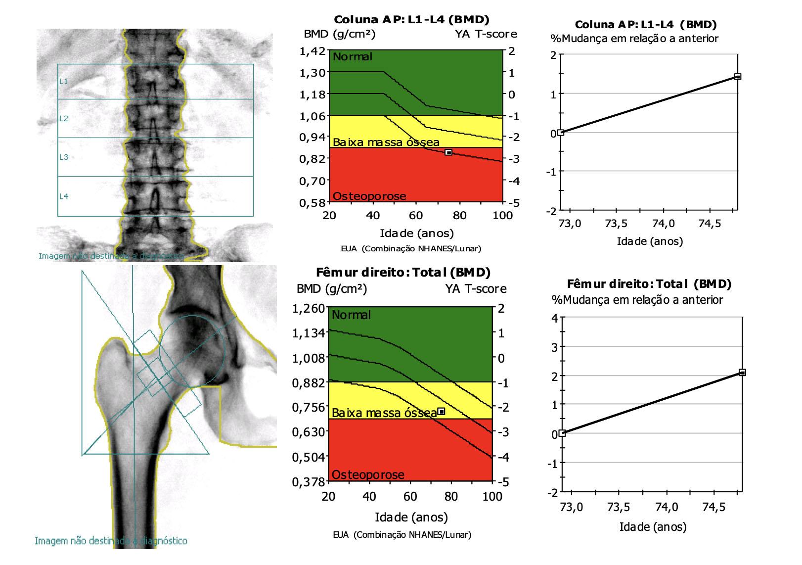 densitometria-ossea