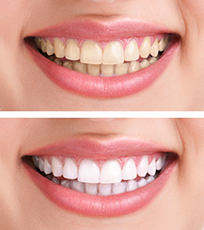 A Perfect Smile with In-Office Teeth Whitening Techniques versus Teeth Whitening Kits