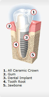 Dental Implants are a Service performed by Dr. Yaron MIller in Vista CA