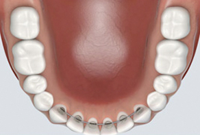 Orthodontic Retention