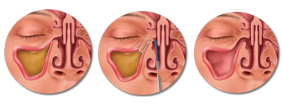 The Balloon Sinuplasty Procedure
