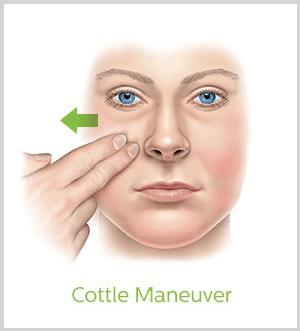 Simple breathing test - cottle maneuver