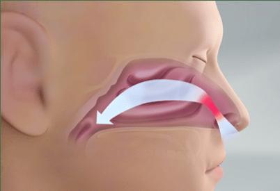 Treating Nasal Valve Collapse