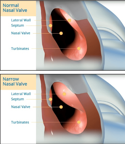 Explaining Nasal Airway Obstruction