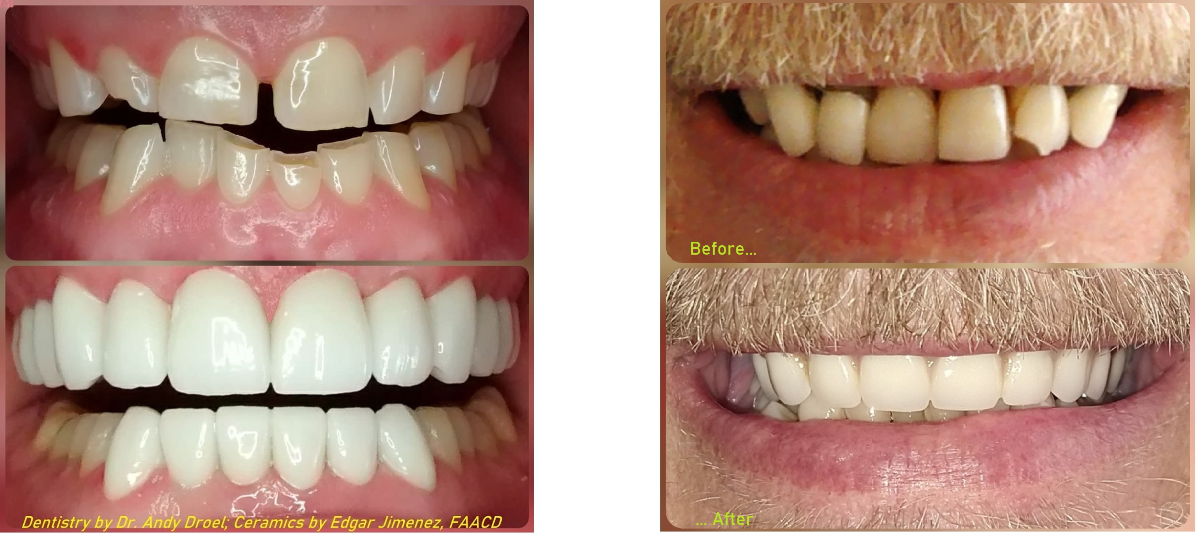 major dental overhaul reconstruction