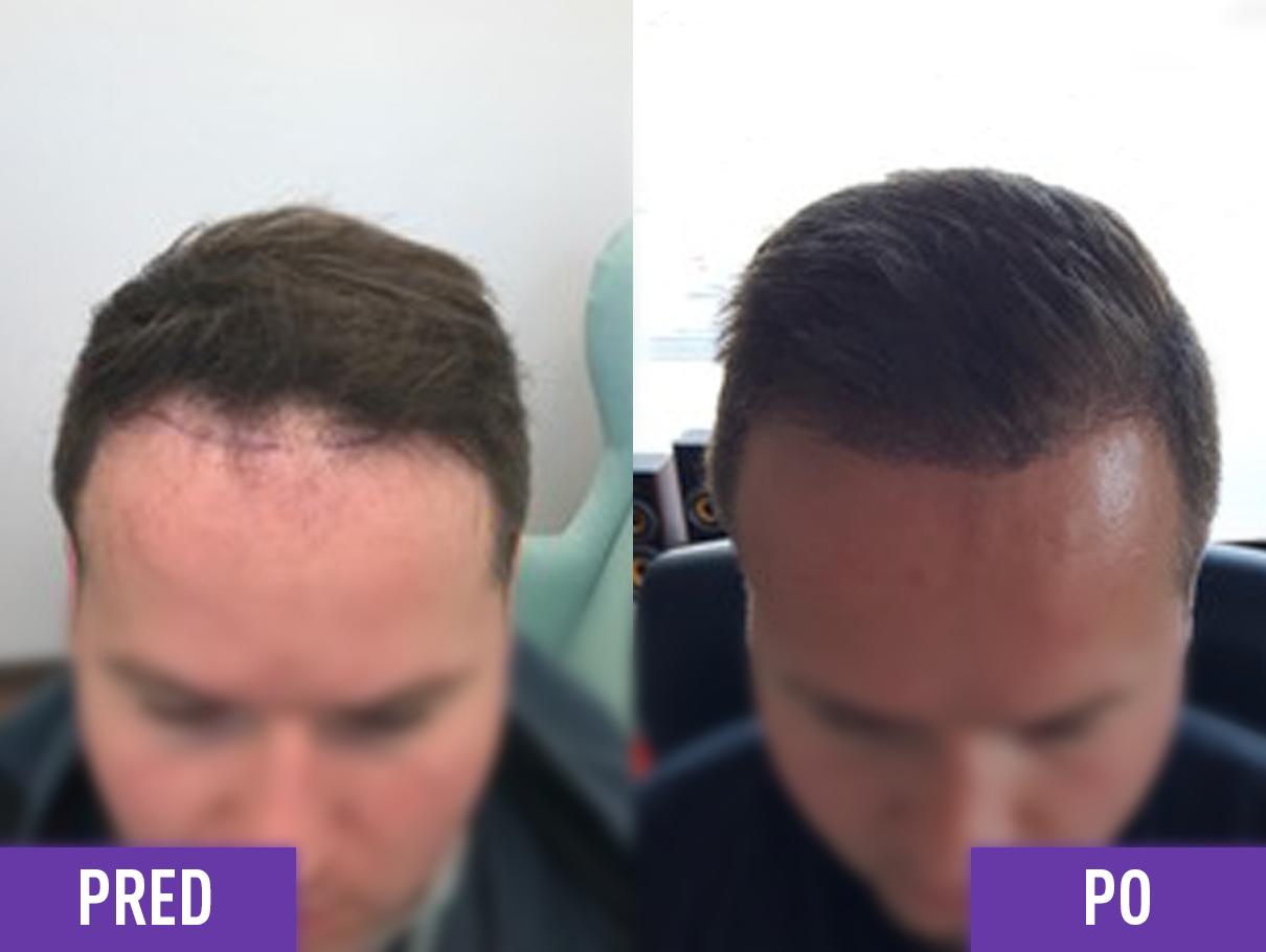 Transplantácia vlasov muža na hlave pred a po 2