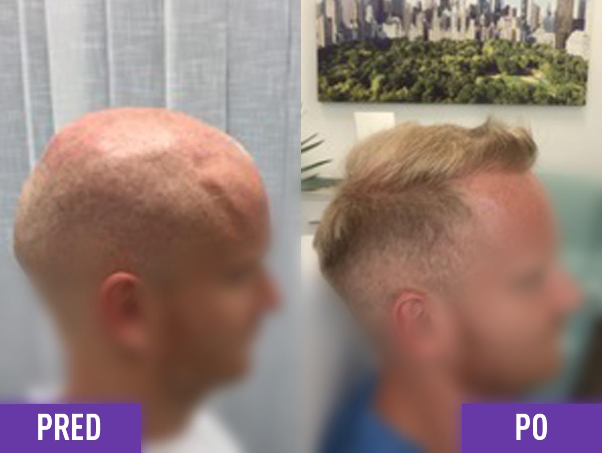 Transplantácia vlasov muža na hlave pred a po 1