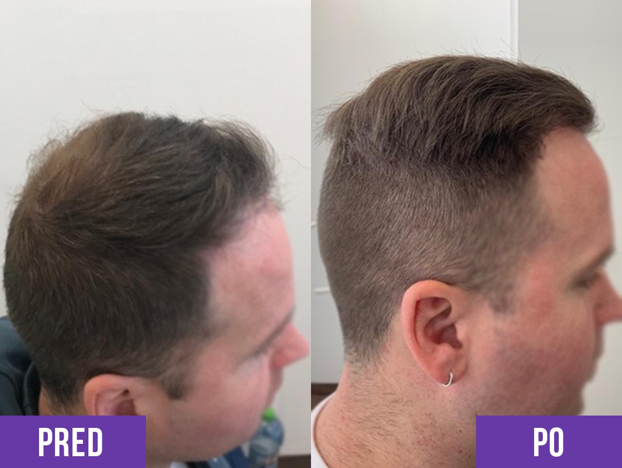 Transplantácia vlasov muža na hlave pred a po 3