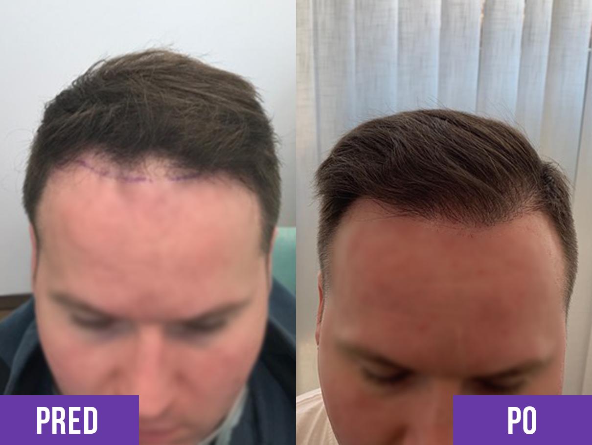 Transplantácia vlasov muža na hlave pred a po 4