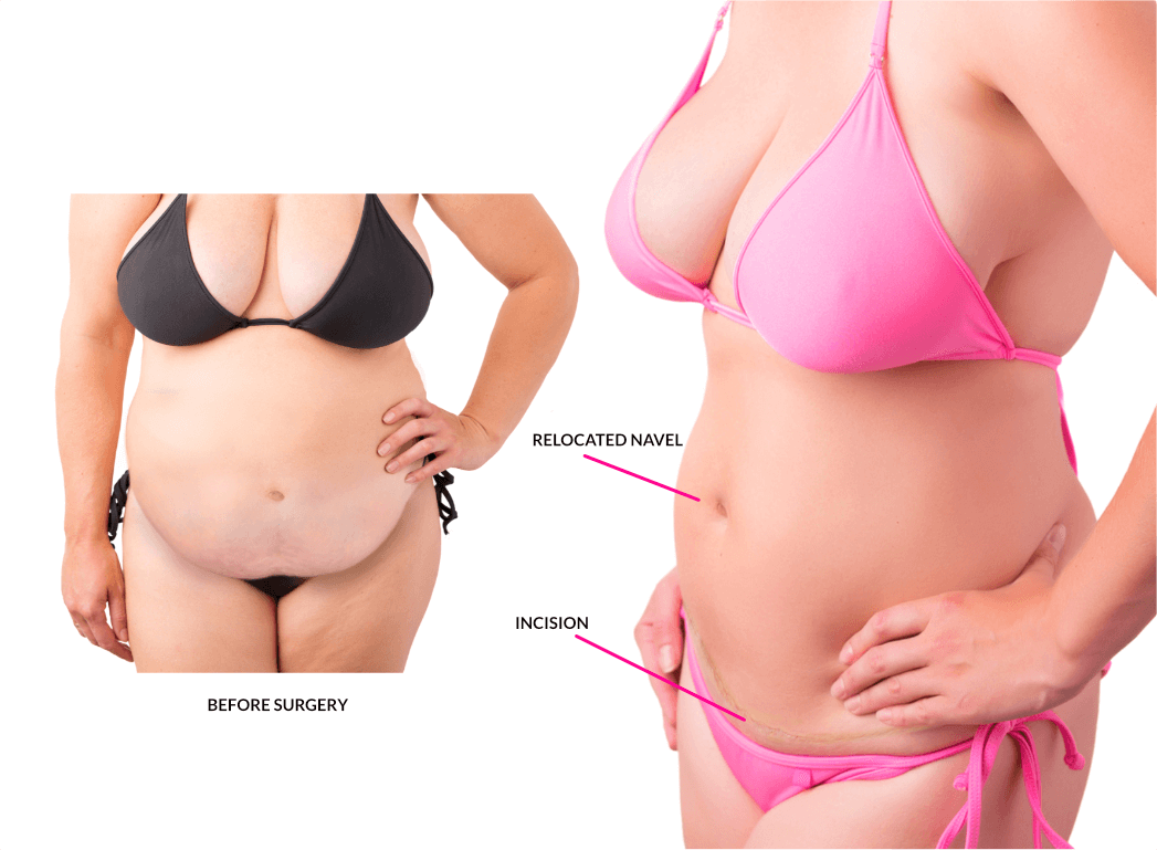 Weight loss weight watchers first week