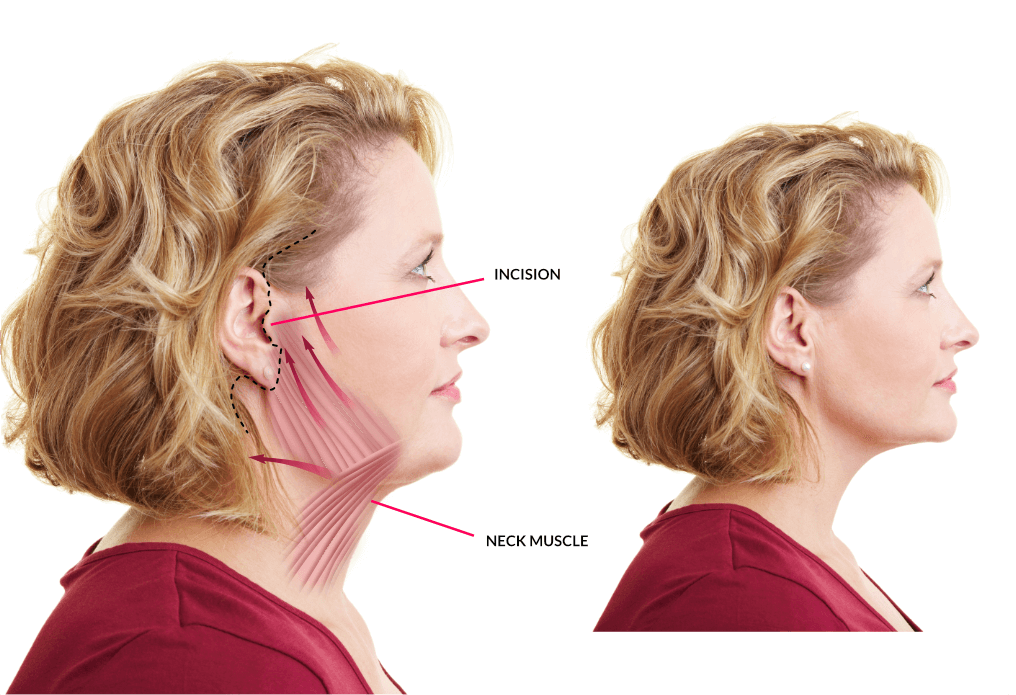 Neck Lift Tauranga Rotorua Neck Lift Surgery Procedure Cost Nz