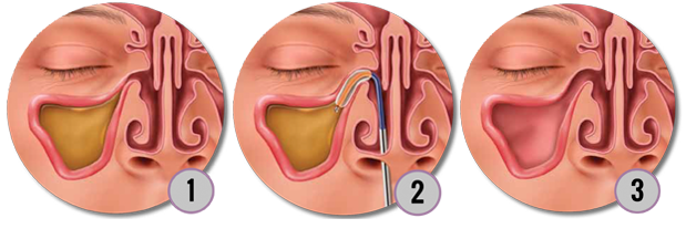 The steps of successful balloon sinuplasty.