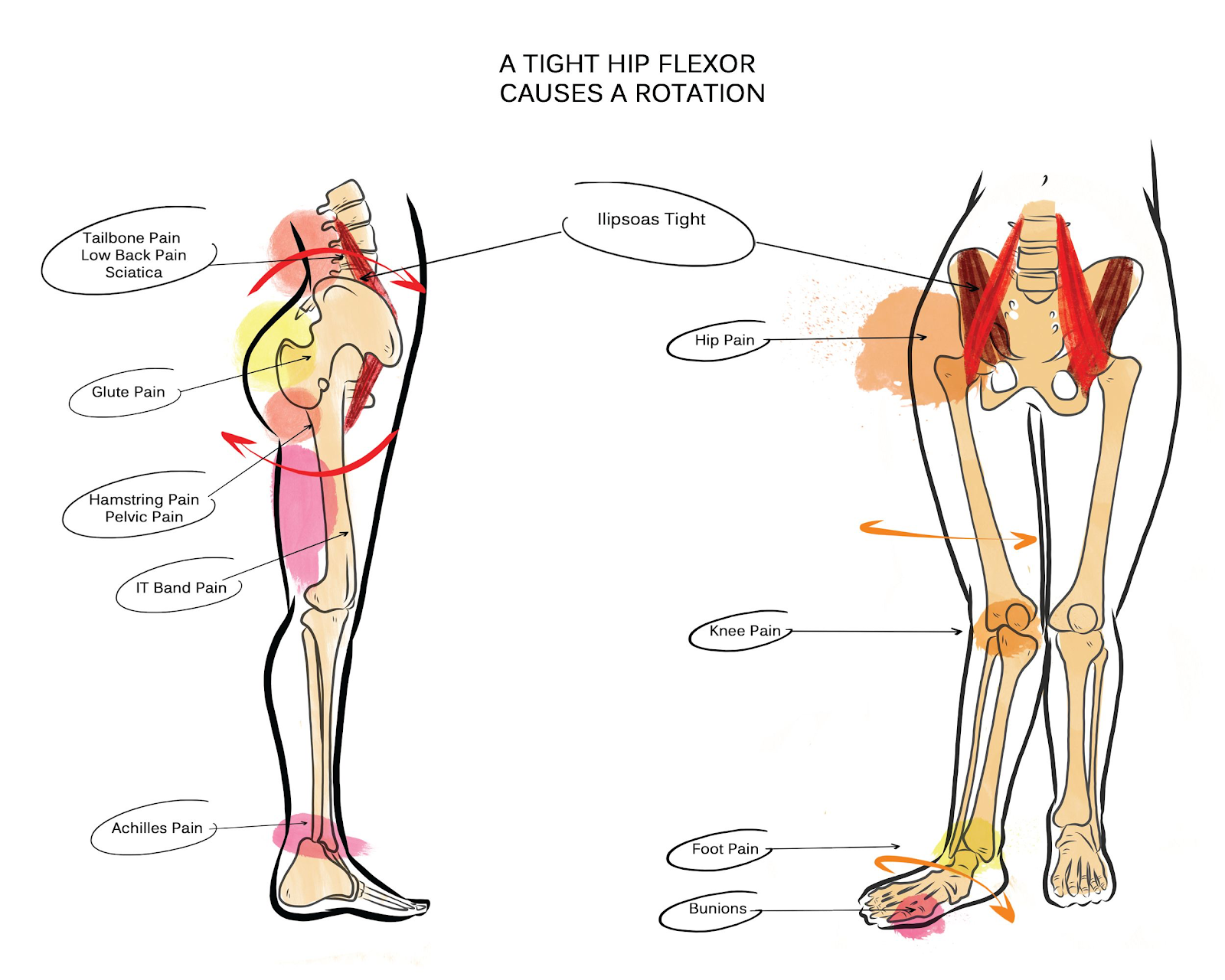 tight hip flexor affects and issues