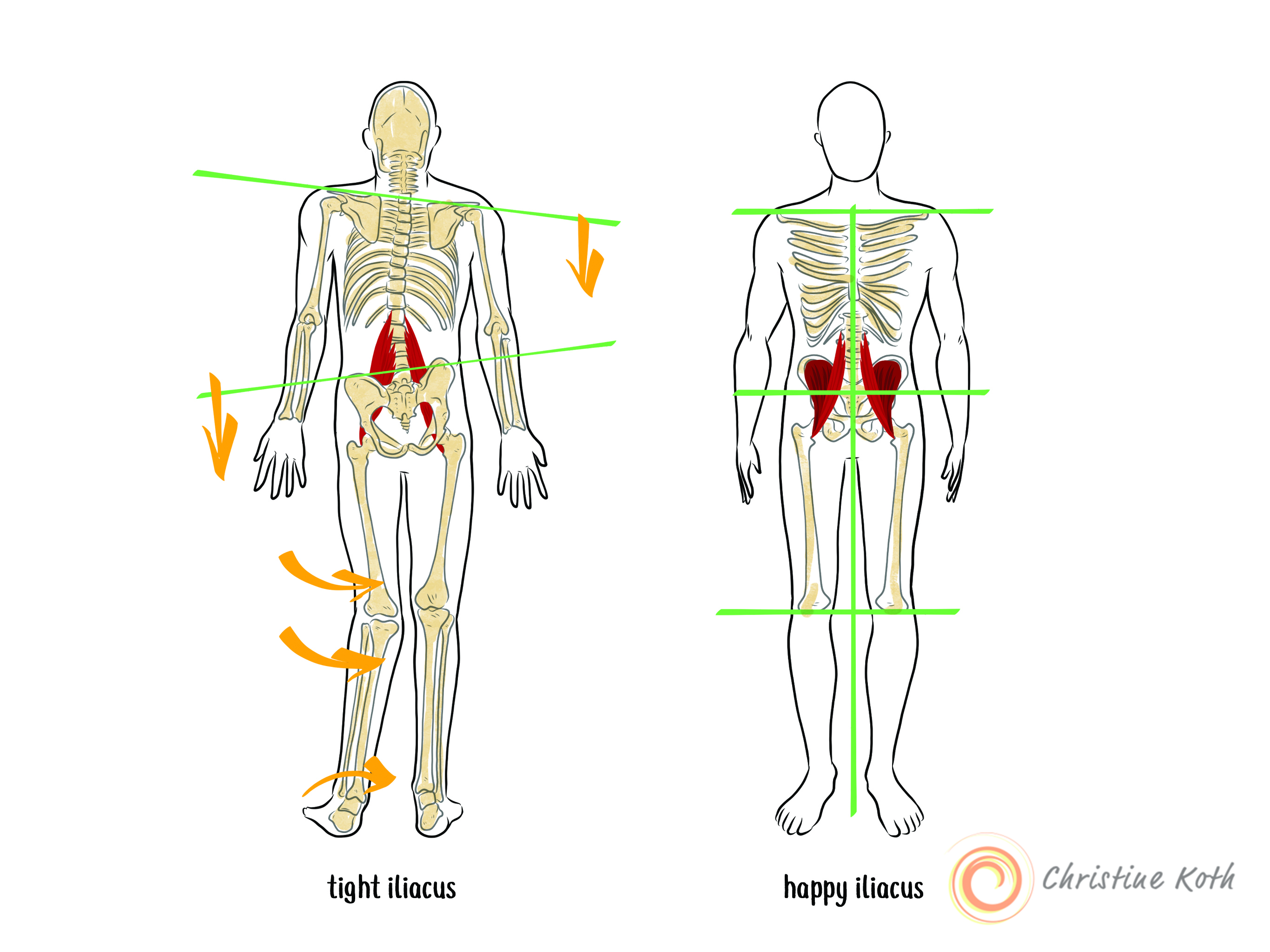 tight iliacus causes dysfunction in the wole body