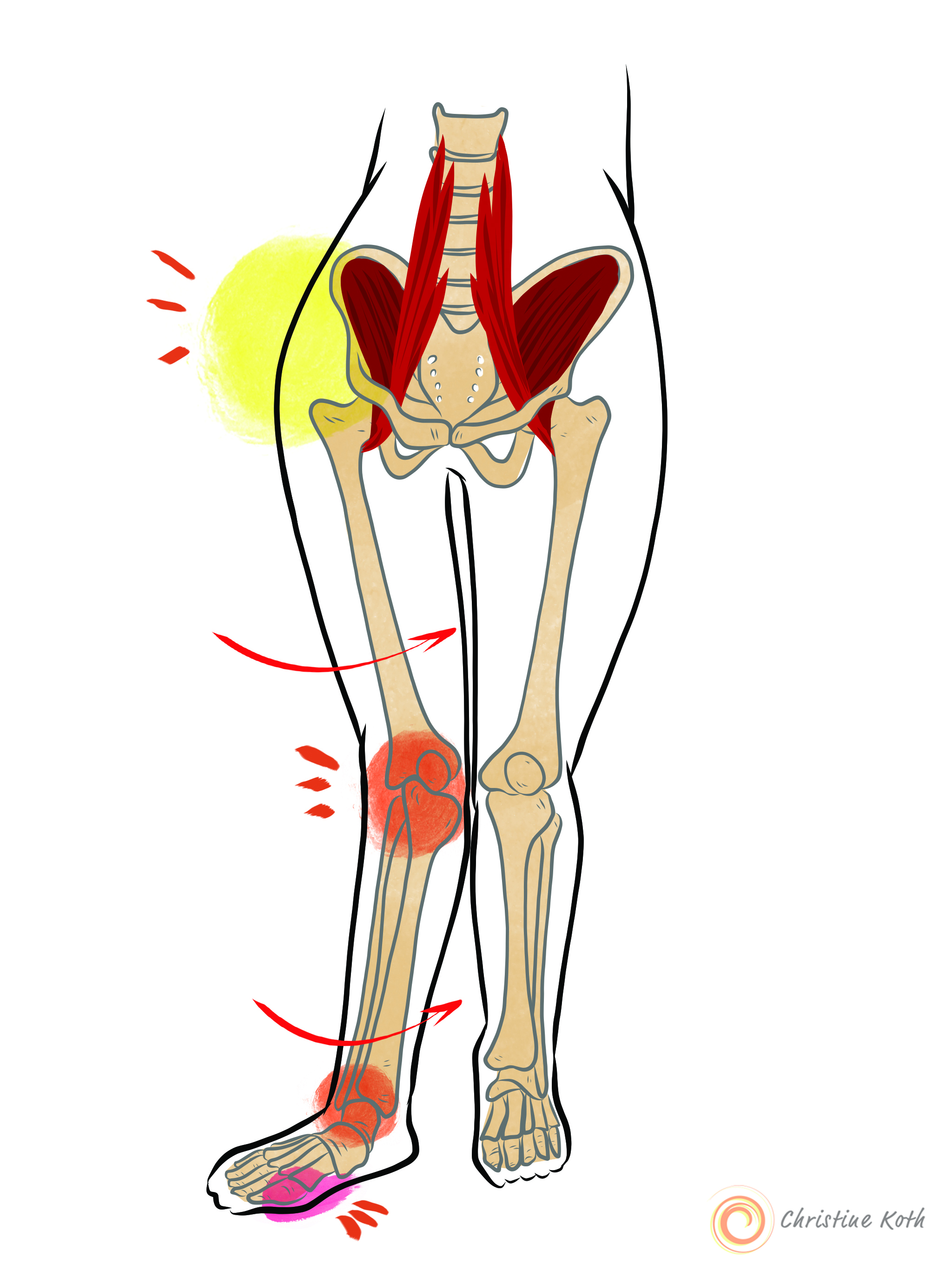 The iliacus rotates the pelvis forward and affect the entire body