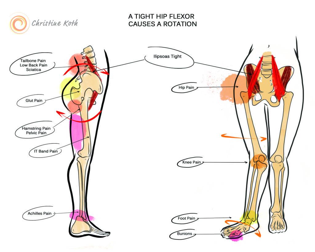 a tight hip flexor causes rotation