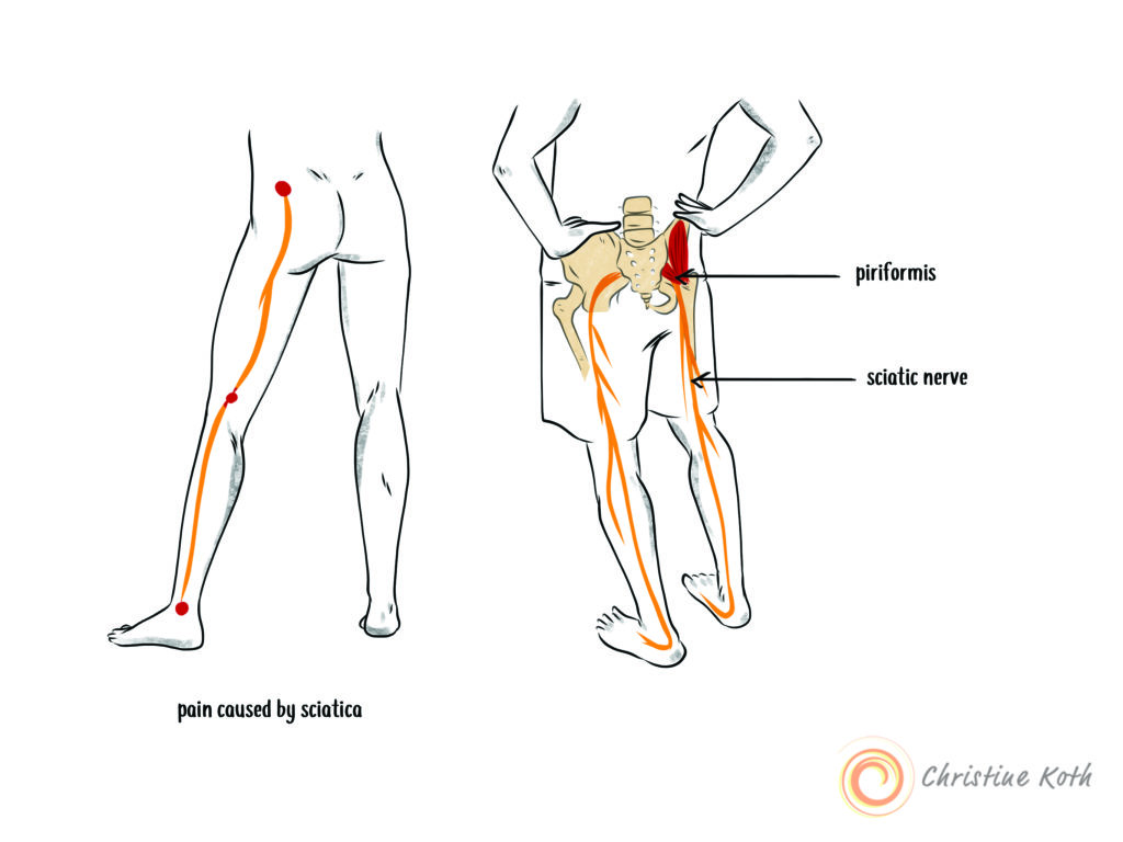 paid caused by sciatica