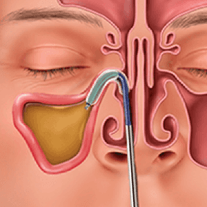 Balloon Sinuplasty Procedure can help provide instant relief