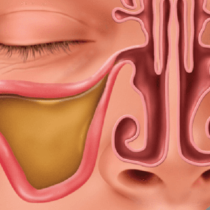 Inflammed, Clogged Sinuses