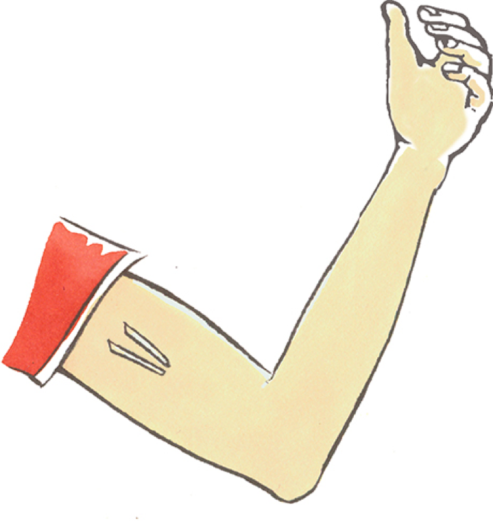 Cartoon depicting the location of contraceptive implants in the arm