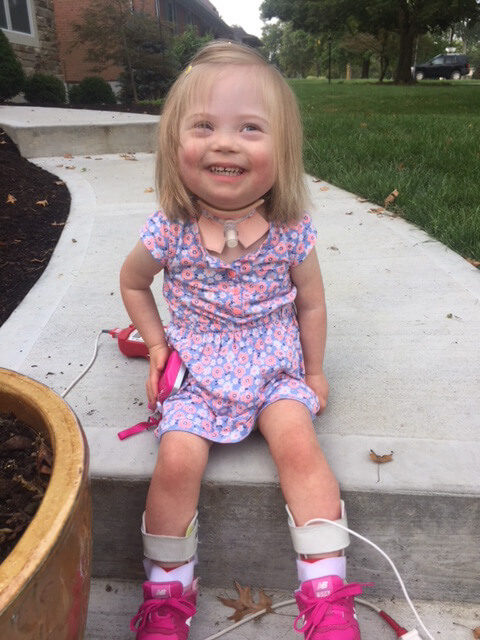 Little girl with trach smiling