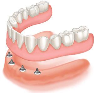 mini implant denture