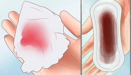 Sau khi uống thuốc phá thai ra máu