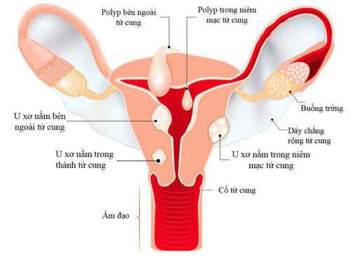 bệnh u xơ tử cung là gì