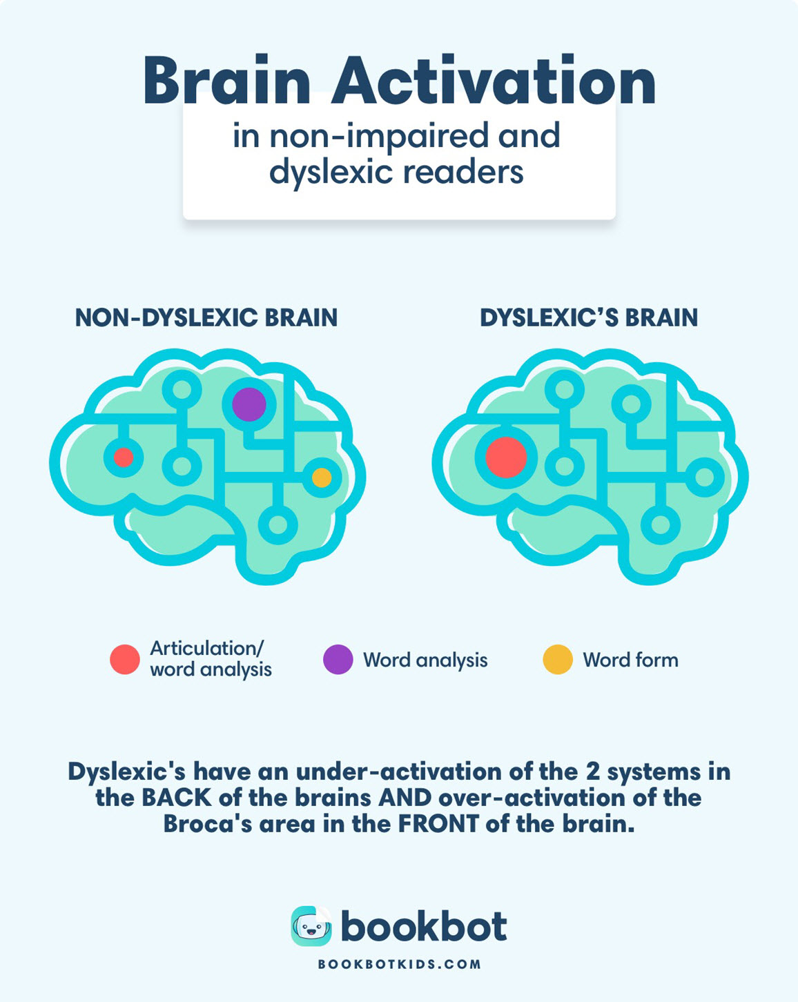 how a dyslexic brain works