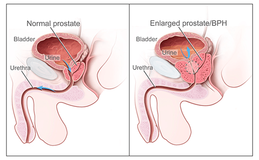 Normal prostate vs benign prostatic hyperplasia
