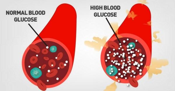 glucose chart