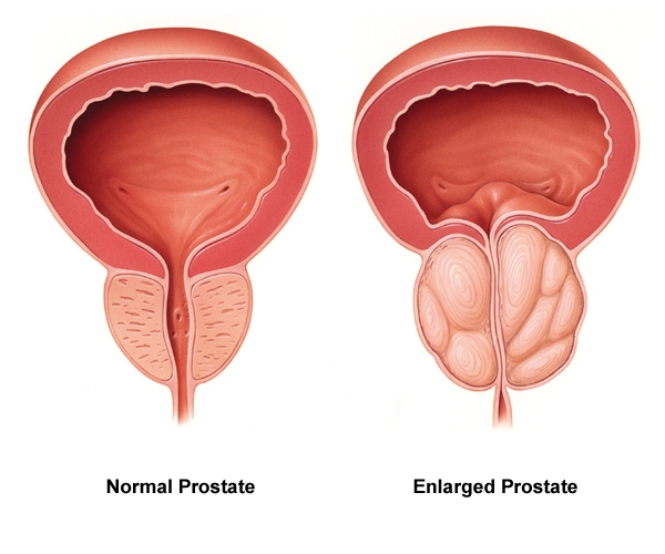 Diagram of enlarged prostate compared to normal prostate