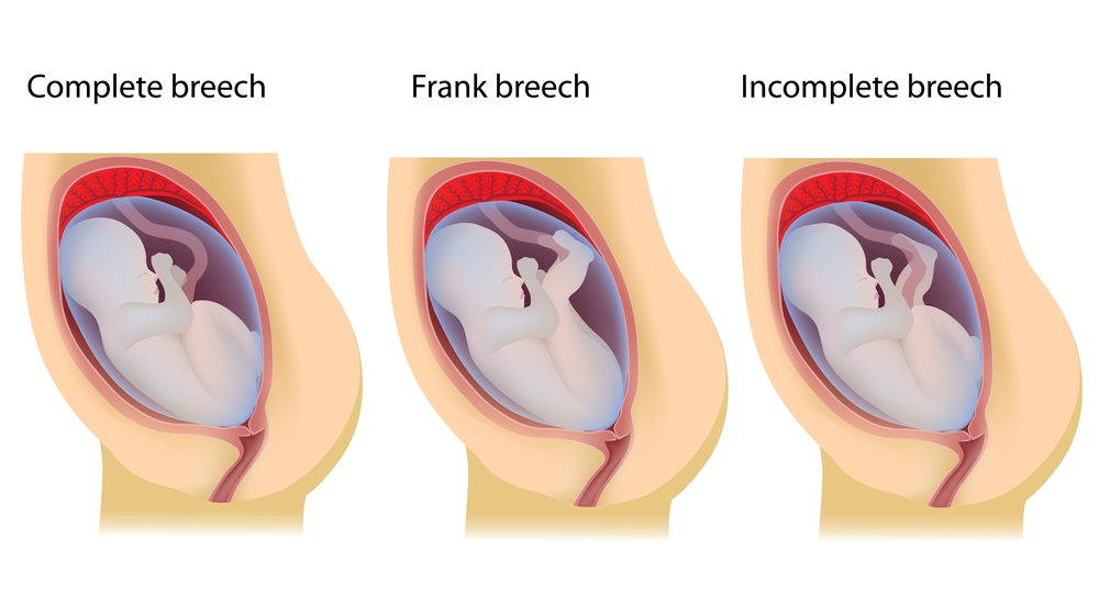 Images of different breech presentations.