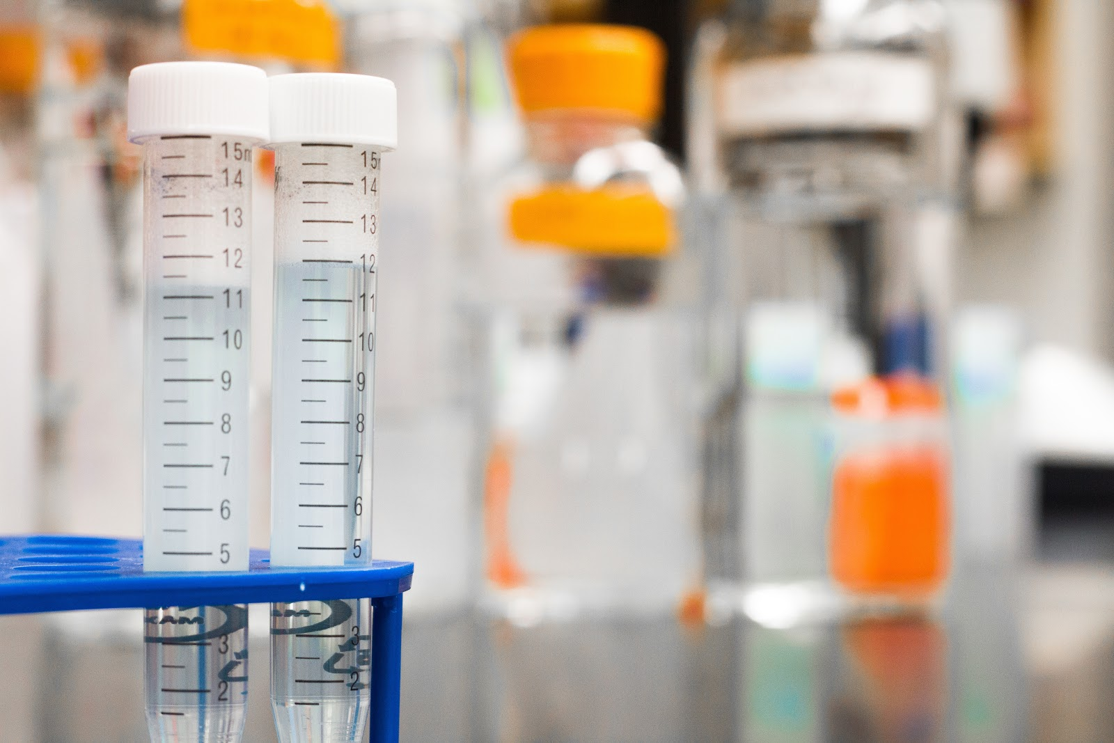 A photo of test tubes in a sperm testing facility.