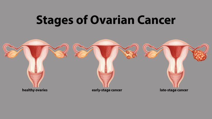 text reading stages of ovarian cancer and below that are three photos of ovaries that are healthy to late-stage cancer left to right