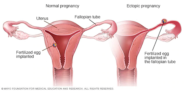 Two images of different types of uteruses concerning two types of pregnancies