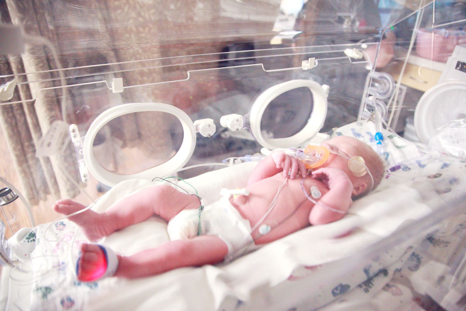 An image of a premature baby in the NICU or neonatal intensive care unit. They have several monitors and are hooked up to a machine to help them breathe.